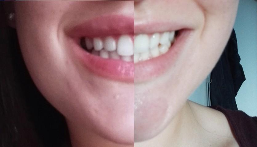 Weißere Zähne bekommen - V-White Vitamin Enriched Whitening Toothpaste