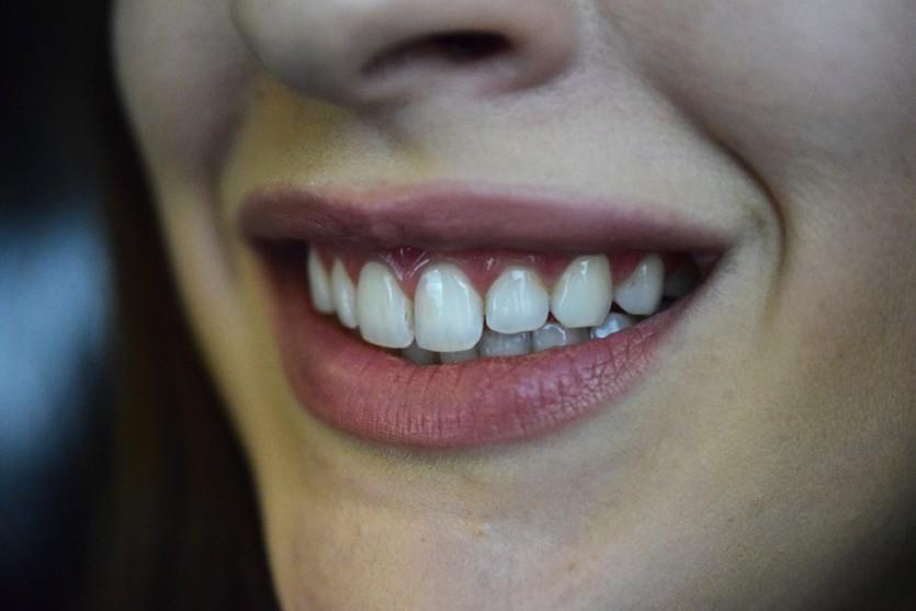 Die Schallzahnbürste von Curaprox | Hydrasonic Black is White Beautyblog München Weiße Zähne