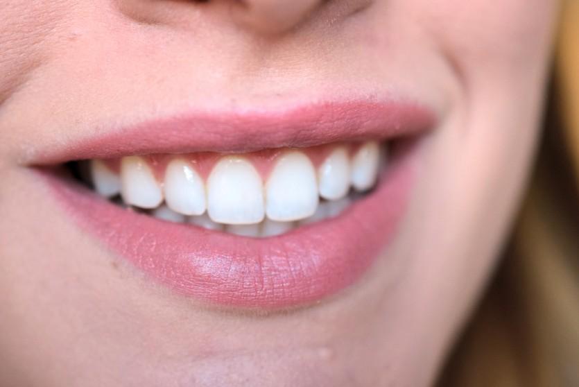 Zahnaufhellung aus der Drogerie | BlanX White Shock